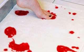 Чем отстирать пятна крови на белом карточки глена домана купить москва