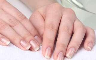 Белые пятна и полоски на ногтях пальцев рук – причины появления, методы лечения в домашних условиях и народные приметы