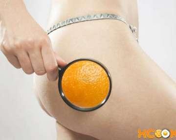 Целлюлит (апельсиновая корка) — причины возникновени и способы борьбы с ним в домашних условиях, в т.ч. народными средствами; профилактика целлюлита