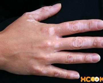 Большие и маленькие белые пятна на коже рук у ребенка и взрослого – почему появились и как лечить в домашних условиях?