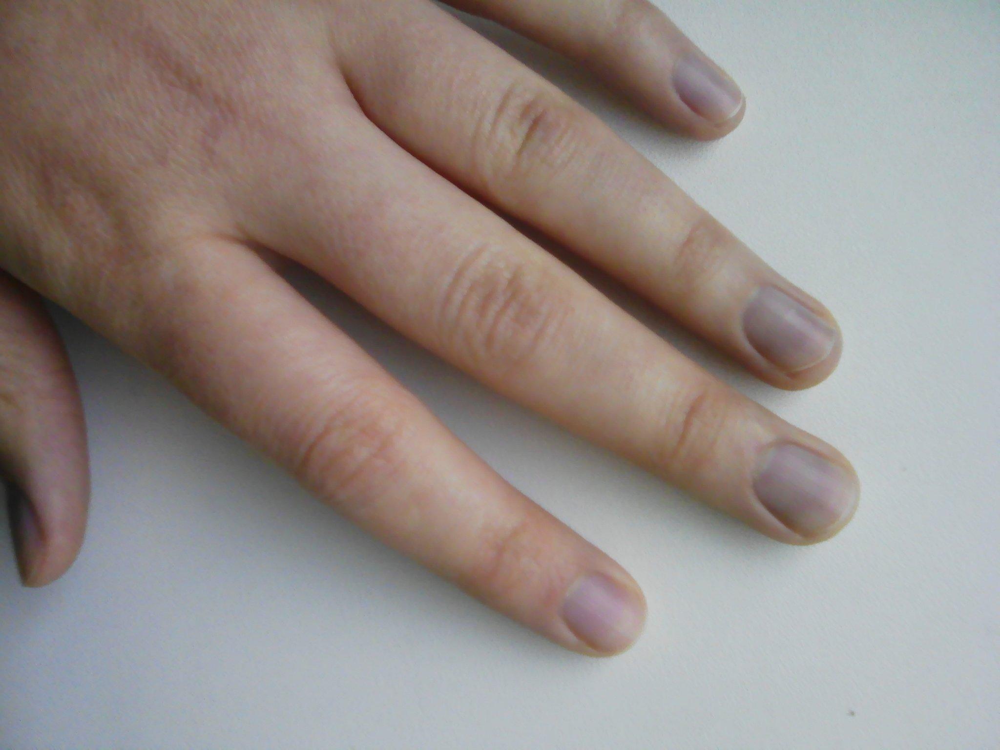 синие ногти на руках