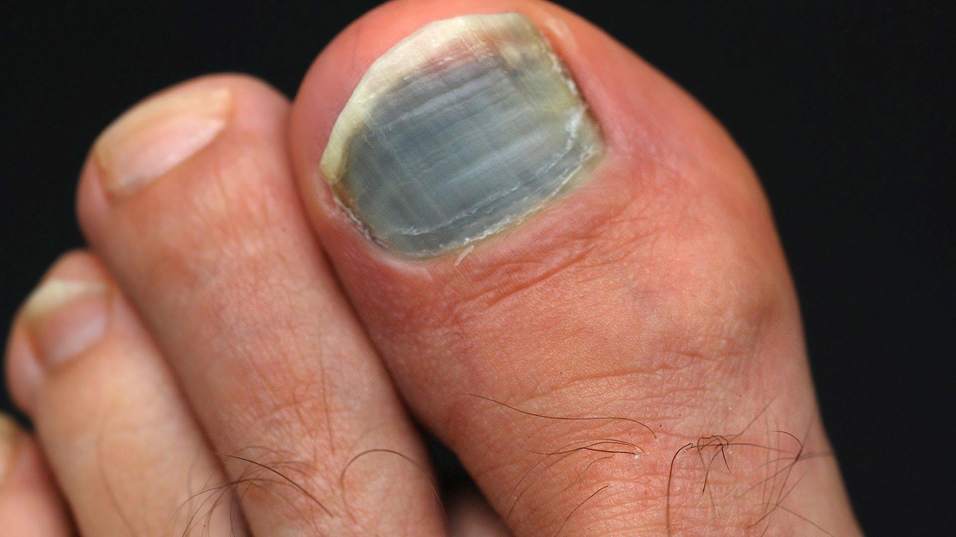 синие ногти на ногах